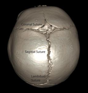 3D CT NORMAL
